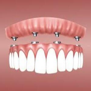 ¿Duelen los implantes dentales al morder o masticar?